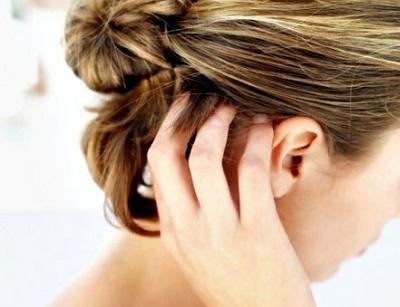 Lice Treatment Orange County 1